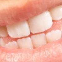 Dentition d'un enfant de 12 ans