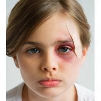 Comment soigner une blessure occulaire ? Que faire si mon enfant se blesse à l'oeil ? Les petites blessures aux yeux arrivent souvent en vacances et lors des jeux en plein air