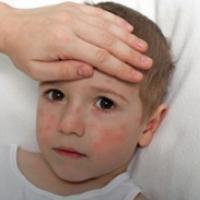 Les complications de la rougeole