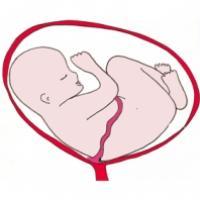 La présentation par l'épaule. Bébé est pratiquement allongé horizontalement dans le ventre de sa mère. Bébé s