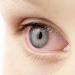 L'humeur aqueuse de l'oeil