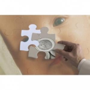 Définition de la Trisomie 21