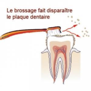 le brossage des dents