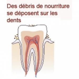 Manger fait augmenter l'acidité de la bouche