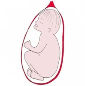 La présentation la face. Bébé se présente bien par la tête, mais la face en avant. Bébé présente la partie la plus large de sa tête. Cette présenta