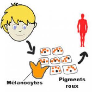 Les types de peau