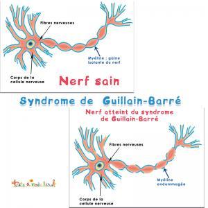 Le syndrome de Guillain-Barré, c'est quoi ?